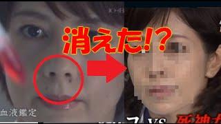 『科捜研の女』出演の沢口靖子さん顔のホクロが消えて話題に!画像あり