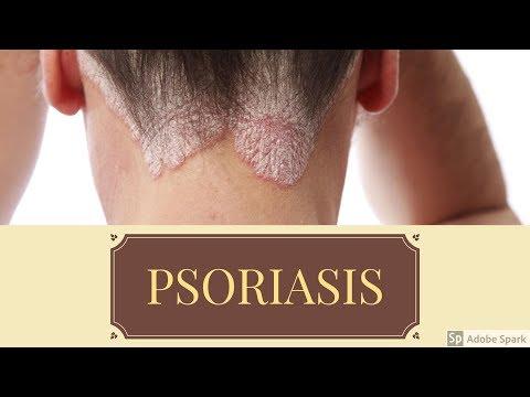 El ungüento de la psoriasis de la eccema