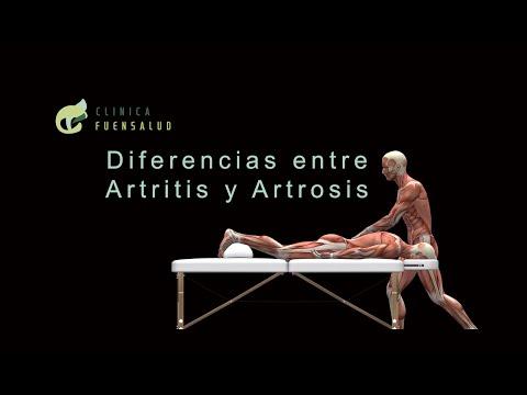 Enyhítse a fájdalmat a bokaízület artrózisával