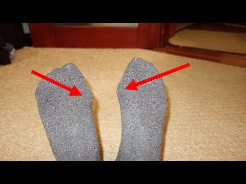 Прополис от косточек ногах, как уменьшить эту болящую шишку