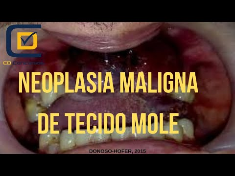 Tratamentul paraziților eozinofili