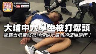 【9.9 時事分析!】第三節:【大埔學生被打爆頭】大埔中六學生被打爆頭,揭露香港警察為何憎恨示威者的深層原因!| 升旗易得道 2019年9月9日
