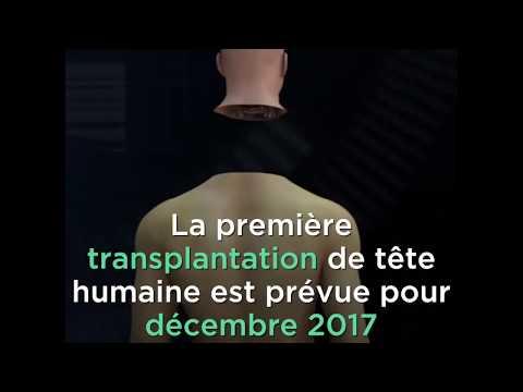 Linstallation pour laugmentation penisa