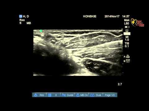 Współczesne ujęcia osteochondroza