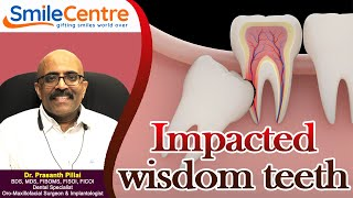 Impacted wisdom teeth - Video