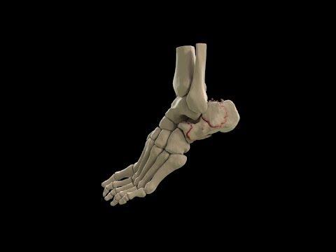 Conseguenze nella forma di verruche di dita del piede