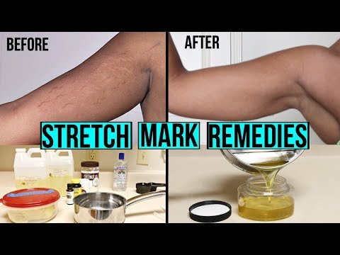 HOW TO GET RID OF STRETCH MARKS & SCARS + DIY AT HOME STRETCH MARK CREAM