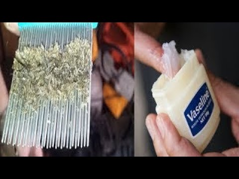 Home Remedies vaseline For head Lice How To Use vaseline Get Rid of Head Lice Naturally  