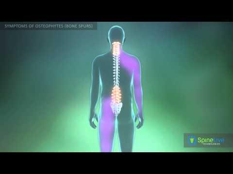 Osteochondrose der thorakalen Gegenanzeigen für Massage