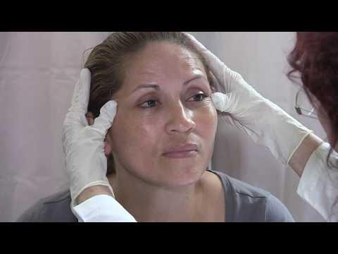Arrossimento di unghie su trattamento di mani