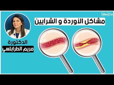 الدكتورة مريم الطرابلسي الكيلاني أخصائية طب الأوعية الدموية