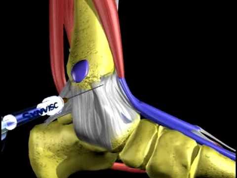 Dolor lumbar y la parte inferior del abdomen y la pierna