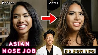 Asian Rhinoplasty | Asian Nose Job | Pretty to Prettier® - Beverly Hills