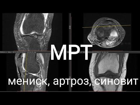 МРТ колена при повреждении мениска, хряща, жидкости в суставе. Врач после операции объясняет