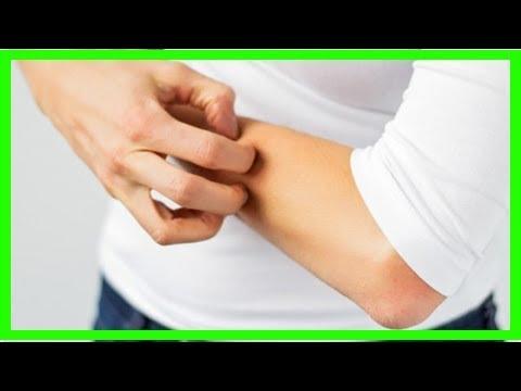 Come curare leczema paratraumatico