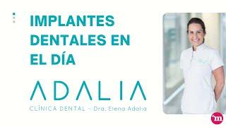 Implantes dentales en el día