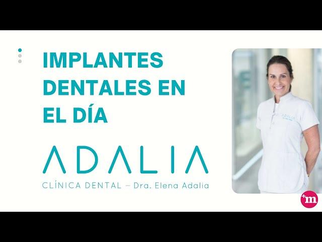 Implantes dentales en el día - Clínica Dental Dra. Elena Adalia