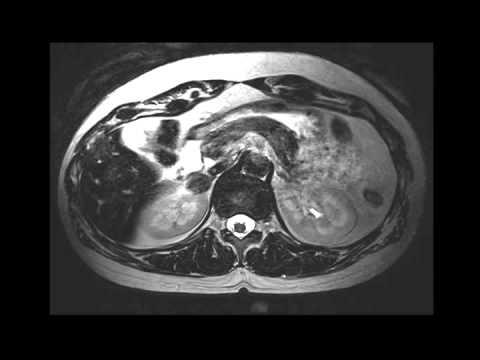 Tratamiento de remedios populares hipertensión intracraneal