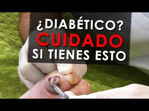 El granate es útil para los pacientes con diabetes