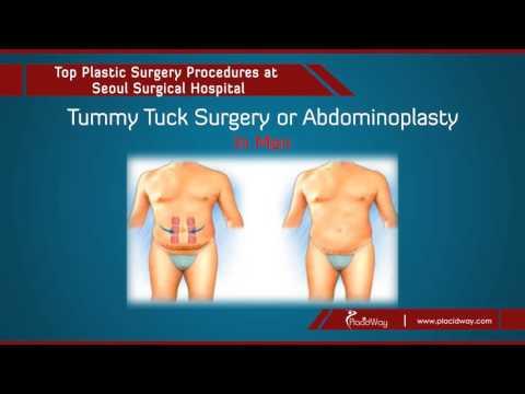 Seoul-Surgical-Korea-Tummy-Tuck-and-Liposuction-in-Seoul-South-Korea