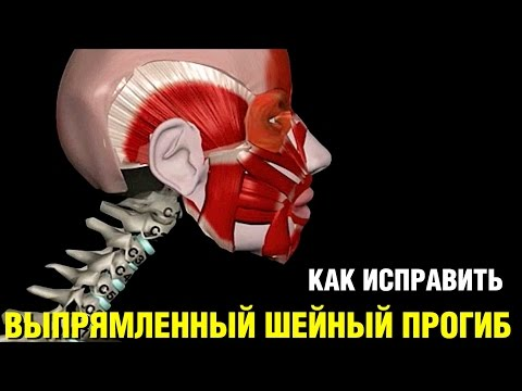 Упражнения для выпрямления спины при сколиозе