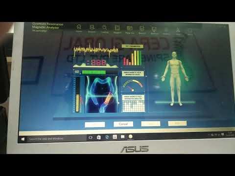 9G, Body Analyzer Machine