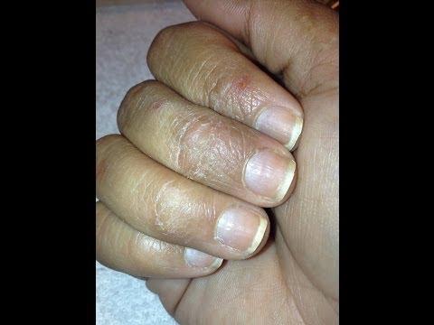 Que ha arraigado las uñas en los pies el tratamiento en samare