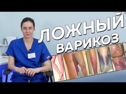 Piciorul euction varicoză