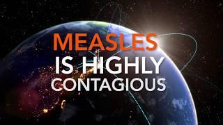 Measles Outbreak 2019