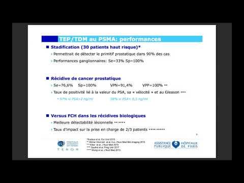 SDA aide dans le cancer de la prostate