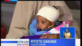 Mtoto Dakane: Safari ya matibabu ya mtoto mwenye uvimbe kichwani