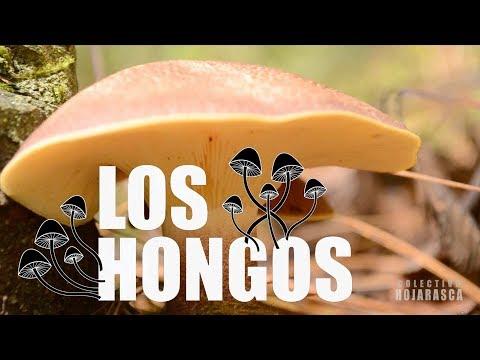 Los ungüentos del hongo en el miembro