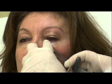 Trattamento del dolore alle articolazioni delle mani