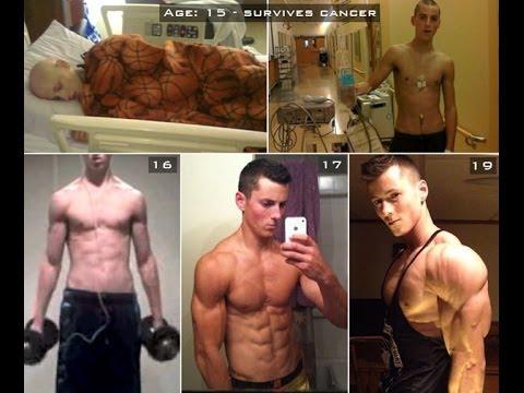 Bệnh nhân ung thư đã thay đổi bản thân nhờ vào việc luyện tập Gym