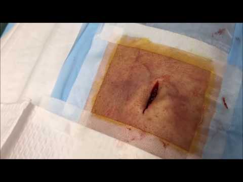 Video Pus-Free MRSA Infected Cyst, Treatment by Dr. G