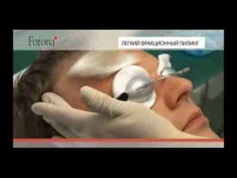 Отбеливающие крема для лица гидрохинон