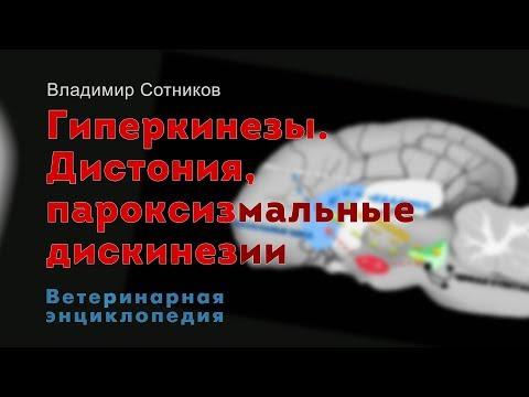 Гиперкинезы. Дистония, пароксизмальные дискинезии
