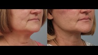 Fireside Chats with Dr. Edwin Williams: Buccal Fat Removal with a Facelift