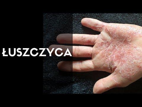 Atopowego zapalenia skóry, który nie rozmazuje