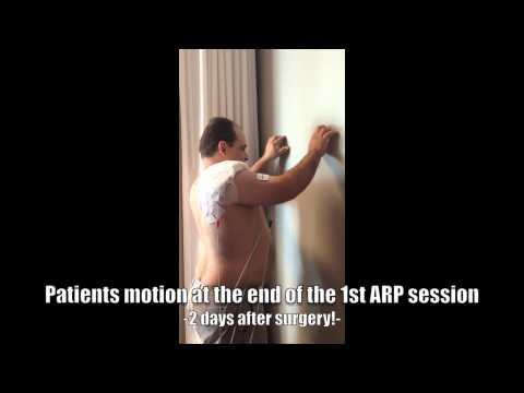 ARP Wave Neurotherapy Treatment after Shoulder surgery for faster recovery and greater range of motion