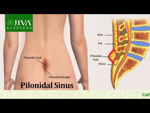 Mr. Kanishka Dahiya Healing Story at Jiva Ayurveda-Treatment of Pilonidal Sinus