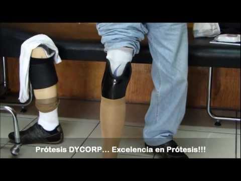 Articulaciones del pie