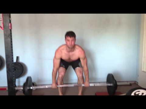 Jak mięśni rectus abdominis