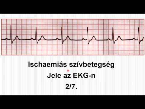 Magas vérnyomás intraokuláris nyomás