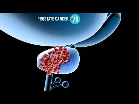 Vakuum in der Behandlung von Prostatitis