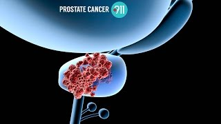Dr. David Samadi - Can Prostate Cancer Be Detected Using A Urine Test?