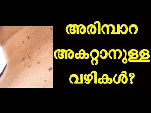 Viermi și germeni giardia