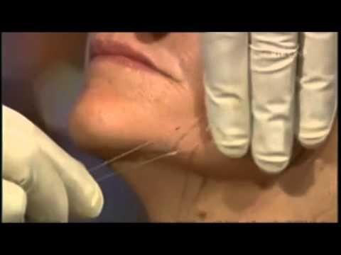 Epektibong facial mask ng facial wrinkles