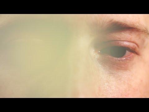 Hidroxid látás
