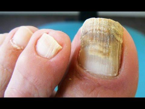 El hongo de las uñas en los pies el programa la salud